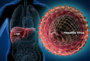 what is viral hepatitis