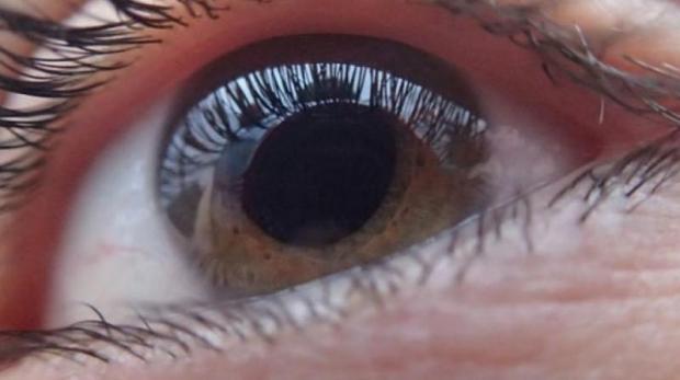 082316-hbv-hcv-eyes